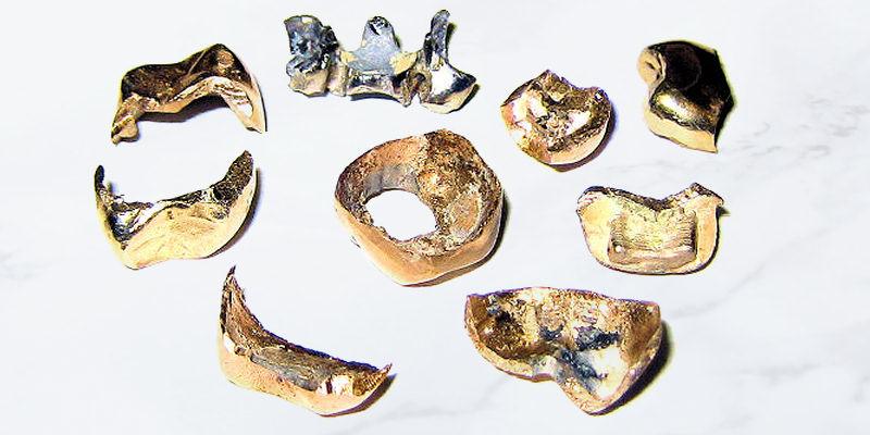 We buy dental gold
